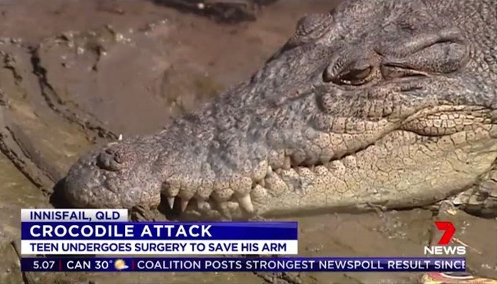 A jumped in crocodile-infested water and got attacked by a crocodile. (Source: Seven Network via CNN)