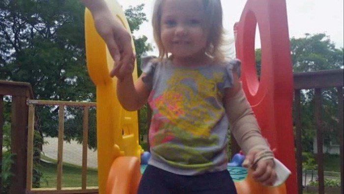 Addelyn, 2, will require physical therapy, and it may be years before she makes a full recovery from the wolf attack. (Source: WKOW/CNN)