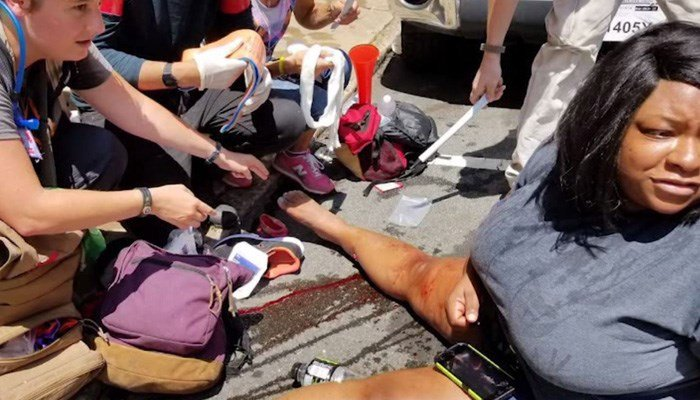 A victim of a car hitting pedestrians lies on the ground in Charlottesville. (Source: ACLU of Virginia Via CNN)