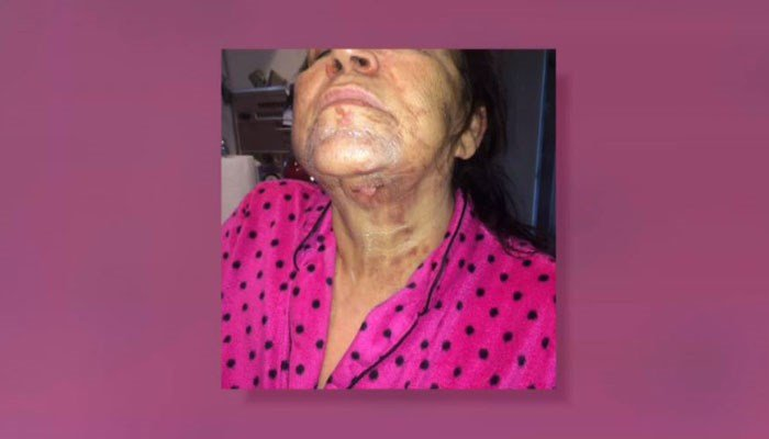 Rosa Rivera and her attorneys say she received second-degree, disfiguring burns when her NutriBullet exploded. (Source: KCAL/KCBS/Acts Law/CNN)