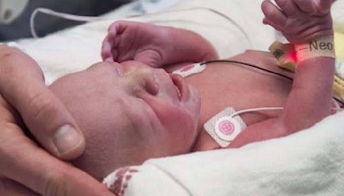 This boy is the first U.S. birth from a transplanted uterus. (Source: Baylor University Medical Center via CNN)