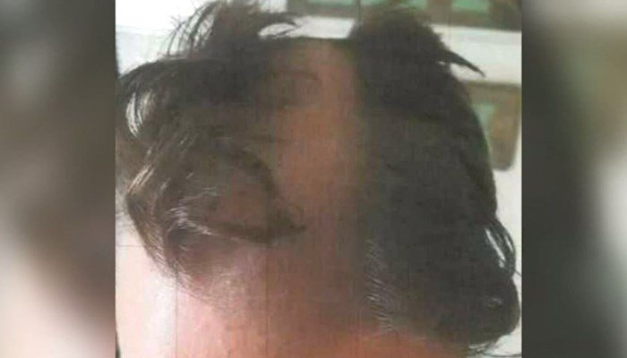 "Barber Khalid Shabani said he accidentally shaved this furrow in the middle of a customer's head after accusing him of ""fidgeting."" (WKOW/CNN)"