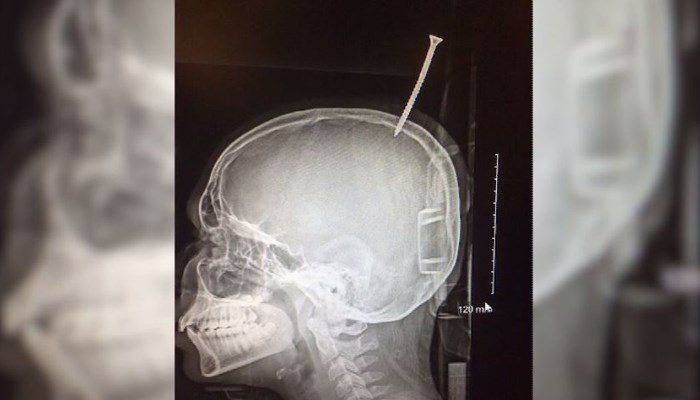 USA teen's brush with death after getting screw lodged in skull