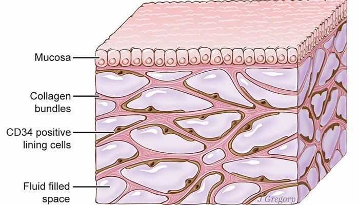 Not a distinct well-defined organ like the heart liver or even the skin it's made up of widespread fluid-filled spaces in and between tissues all over the body known as the'interstitium
