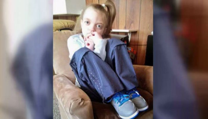 An autopsy shows 13-year-old Brianna Gussert died of sepsis, a blood infection that can be caused by neglect, at her mother's house last year. (Source: Greg Gussert/WGBA/CNN)