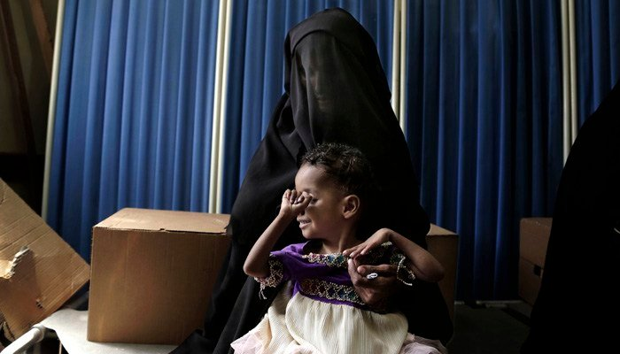 The World Health Organization says 400,000 Yemeni children are severely malnourished. (Source: AP Photo/Nariman El-Mofty)