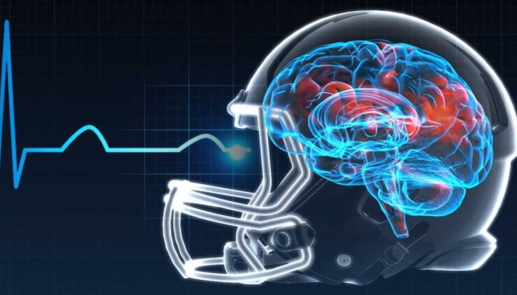 Iowa is now joining other states in offering concussion insurance for student athletes. (Source: CNN)