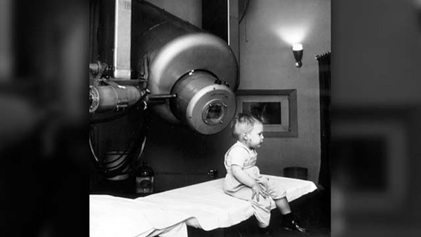 Young Gordon Isaacs was the first patient treated with radiation therapy in 1957 for an eye tumor in his right eye. Cancer had previously taken his left eye. (Source: National Cancer Institute/Stanford University)