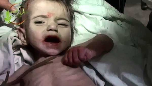 Syrian children, including this one-year-old, are dying from starvation and the regime is barring food and medicine from entering the country.  (Source: YouTube/CNN)