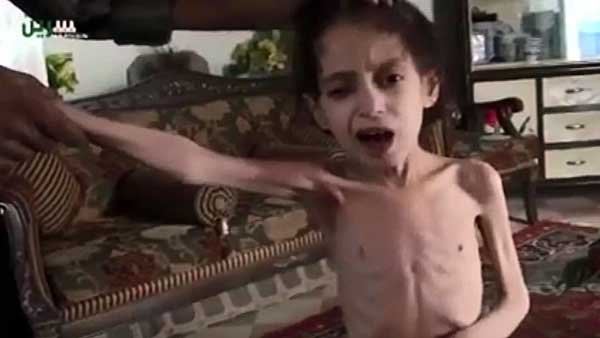 Doctors at one hospital say that of 43 people who have died from starvation, 22 were children. (Source: YouTube/CNN)