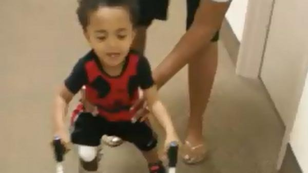 Kayden Kinckle, 2, learns to walk with an amputated right foot and left leg. (Source: Nikki Sessoms/YouTube)