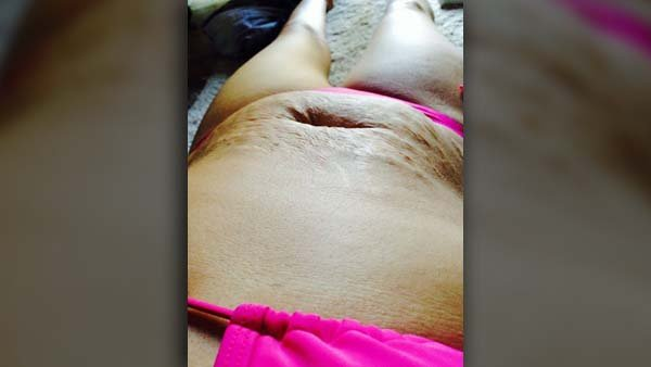 Tanis Jex-Blake took this picture in her living room on the same day she went home in tears over three people, including one woman, who taunted her stretch marks. (Source: Tanis Jex-Blake/Facebook)