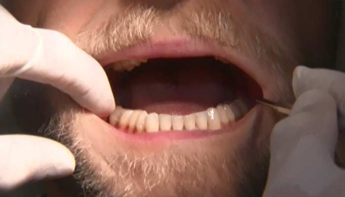 A mouth guard, as well as cutting down on caffeine, can help with teeth grinding. (Source: CNN)